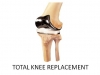 toatal-knee-replacement